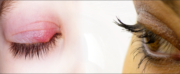 علاج شحاذ العين (دمل الجفن)